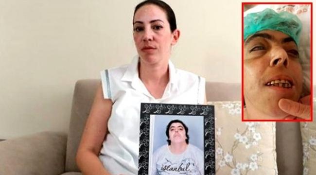 Adana'da zihinsel engelli kadına akılalmaz işkence! Gözlerini oymuşlar