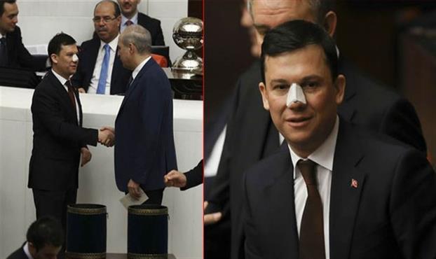 AKP'li Milletvekili Burnunu Kimin Kırdığını Açıkladı