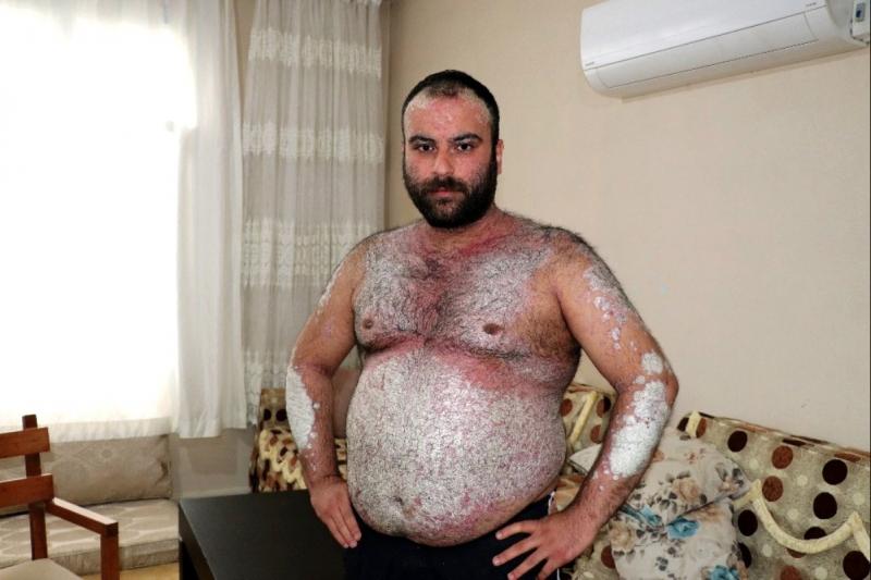 Adana'ya yaşayan genç adam vücudundaki pullanmadan dolayı sokağa çıkamaz hale geldi