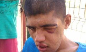 Burdur'da Engelli Gence Darp Dehşeti! Çenesi Kırıldı, Gözü Çıkma Noktasına Geldi