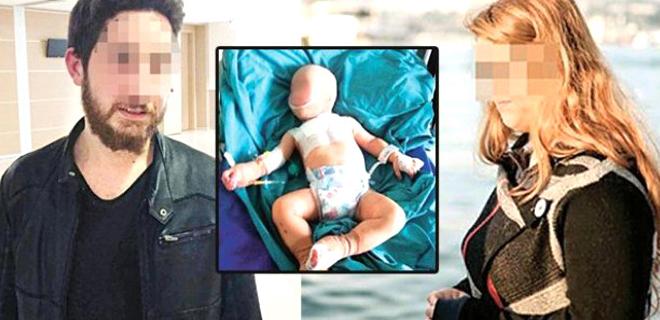 Vücudunda Sigara Söndürülen Bebeğin Anne-Babası Serbest Kaldı