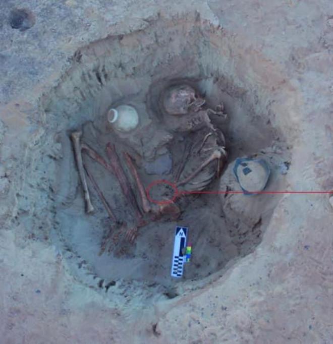 Doğum Sırasında Ölen Kadının 3700 Yıllık Cesedi Bulundu
