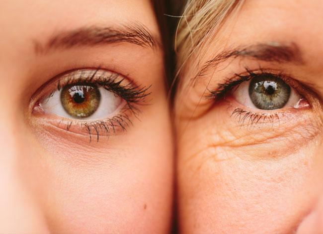 Göz Çevresi Kırışıklıkları Nasıl Geçer?