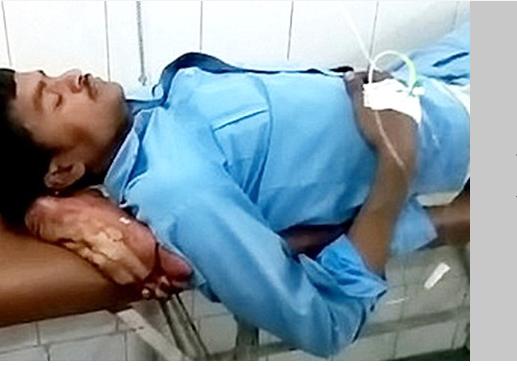 Hastanede Büyük Skandal! Kopan Bacağını Kafasının Altına Koyarak 2 Saat Boyunca Beklettiler