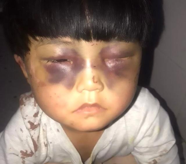 Korkunç! Öz Babası İşkence Edip Tuvalete Zincirledi, Eve Gelen Misafir Kurtardı